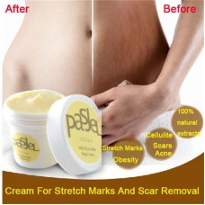 Stretch Mark Cream For Stretch Marks And Scar Removal Powerful Maternity Treatment