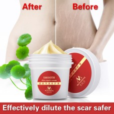 Precious Skin Body Cream powerful stretch marks remover and scar removal cream